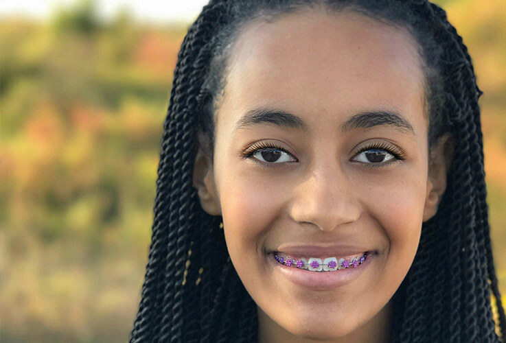 Closeup of girl with braces