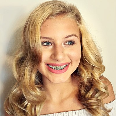 Heath Traditional Braces Comprehensive Orthodontic Treatment