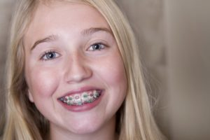 A smiling girl with braces.