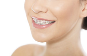 pretty woman smiling with braces