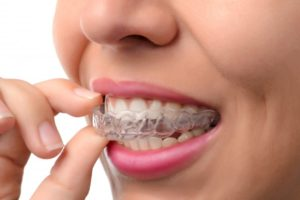 woman smiling while inserting invisalign