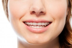 woman in clear braces smiling