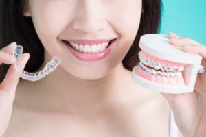 Woman holding braces and clear trays