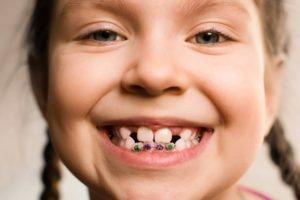 little girl wearing braces smiling