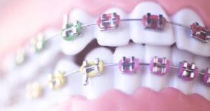 Up-close smile of teeth with braces