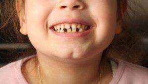 little girl with gapped bottom teeth
