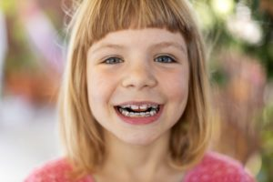 young girl smiling wearing braces placed by orthodontist