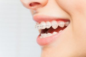 Close up of woman with braces