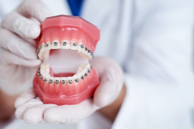 Orthodontist holding up model of teeth with braces